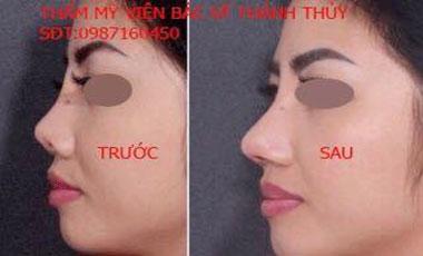 Sửa đầu mũi hếch